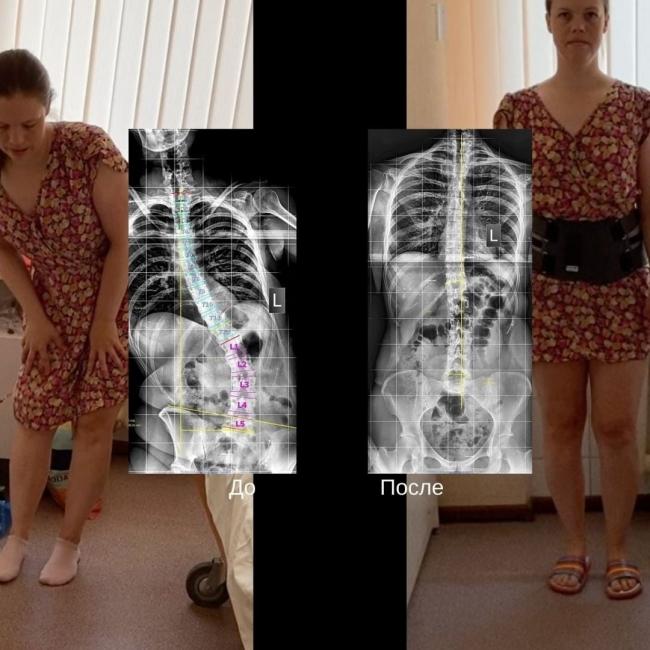 Image for Медики Университетской клиники ПИМУ за полчаса поставили нижегородку на ноги