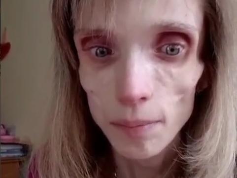 Image for Девушка весом 17 килограммов прибыла в Нижний Новгород бороться с анорексией